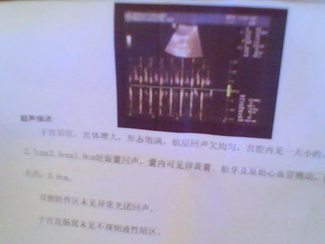 怀孕7周彩超图 怀孕7周胎儿彩超图 怀孕7彩超检查报告单-怀孕医院检图片