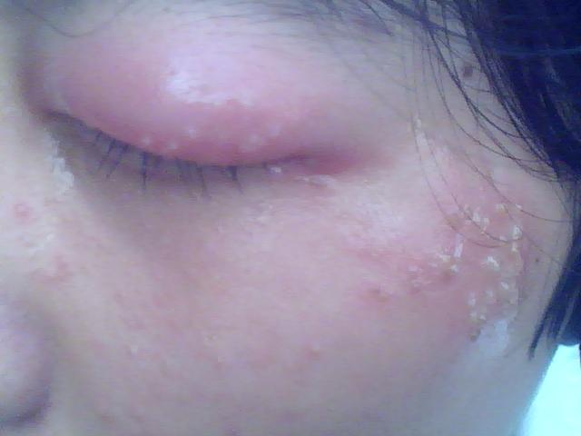 请问我这是怎么回事啊 眼睛肿的厉害 眼珠里还有血丝 -眼球布满红血